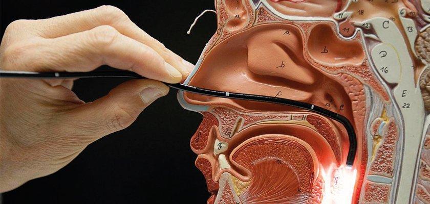 endoscopia-das-vias-aereas-superiores-nariz-e-garganta-07062016213147.jpg